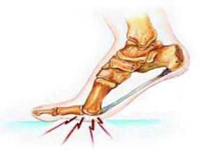 松弛性跖痛症