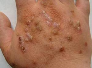 黑布拉痒疹