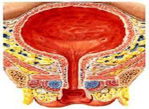 寄生虫性尿路感染