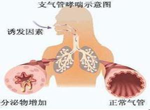 小儿支气管哮喘