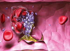 新生儿Rh血型不合溶血病