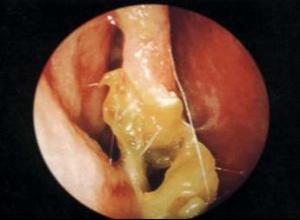 慢性肥厚性鼻炎