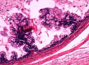 乳腺叶状囊肉瘤