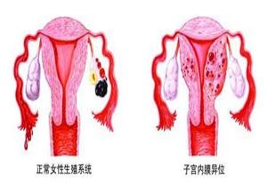 子宫内膜异位
