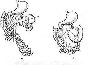 先天性小肠闭锁和肠狭窄