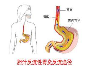胆汁返流性胃炎