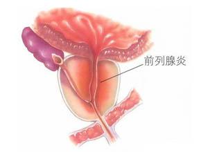 非细菌性前列腺炎