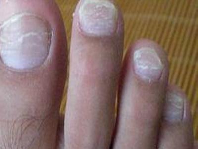 皮肤癣菌 霉菌感染 酵母菌