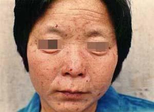 皮肤卟啉病