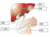 急性胆管炎