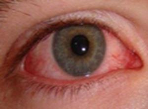 过敏性眼睑皮肤炎