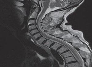 老年人脊髓亚急性联合变性