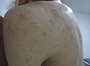 马拉色菌病