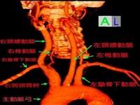 颈动脉盗血综合征