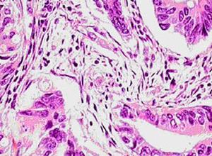 乳头状囊腺癌
