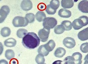成增多引起异常血液凝固的一种疾病.临床较少见,可分为原发性和继