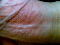 阴茎珍珠疹