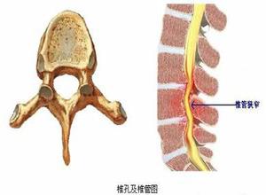 腰椎椎管狭窄症