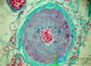 常染色体隐性遗传性脑动脉病伴白质脑病