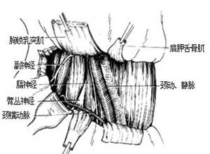 脊椎结核并发窦道