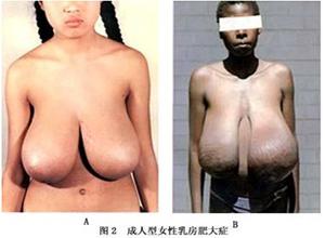 成人型女性乳房肥大症