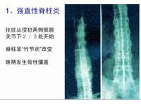 脊柱关节炎