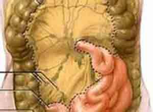 结核性肠系膜淋巴结炎