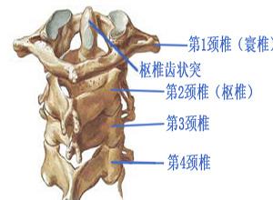 寰椎骨折脱位