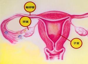 阴道恶性肿瘤