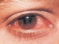 病毒性结膜炎