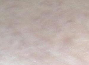 毛囊周角化病
