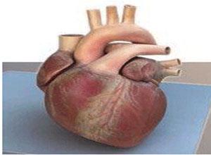 缺血性心肌病