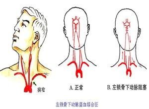 锁骨下动脉盗血综合征