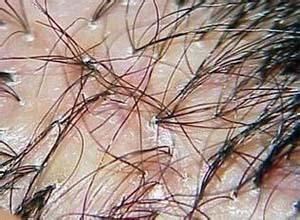 脱发性毛囊炎
