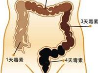 便秘性结肠炎