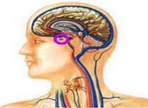 垂体前叶机能减退症