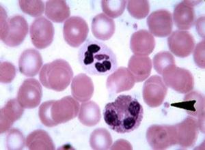 妊娠合并特发性血小板减少性紫癜