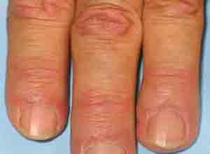 皮肌炎与多发性肌炎