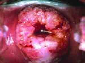 宫颈微小型浸润癌