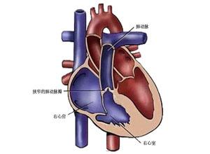 肺动脉口狭窄