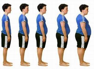 痛性肥胖病