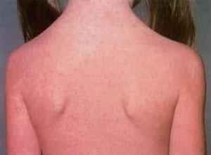 先天性风疹