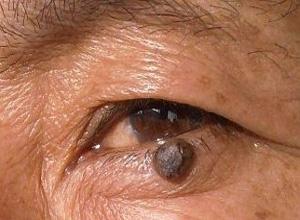 眼睑恶性黑色素细胞肿瘤
