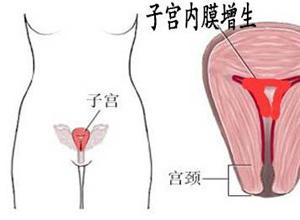 子宫内膜增生