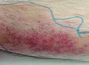 急性蜂窝织炎