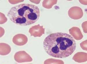 中性粒细胞减少症