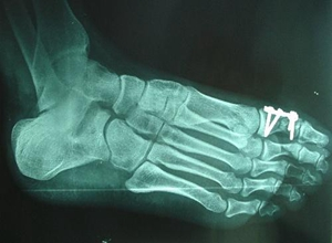 跖骨、趾骨骨折