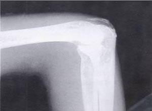 二水焦磷酸钙结晶沉积症