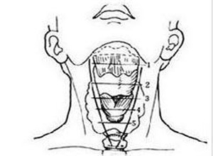 颈部开放性损伤
