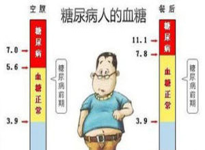 II型糖尿病